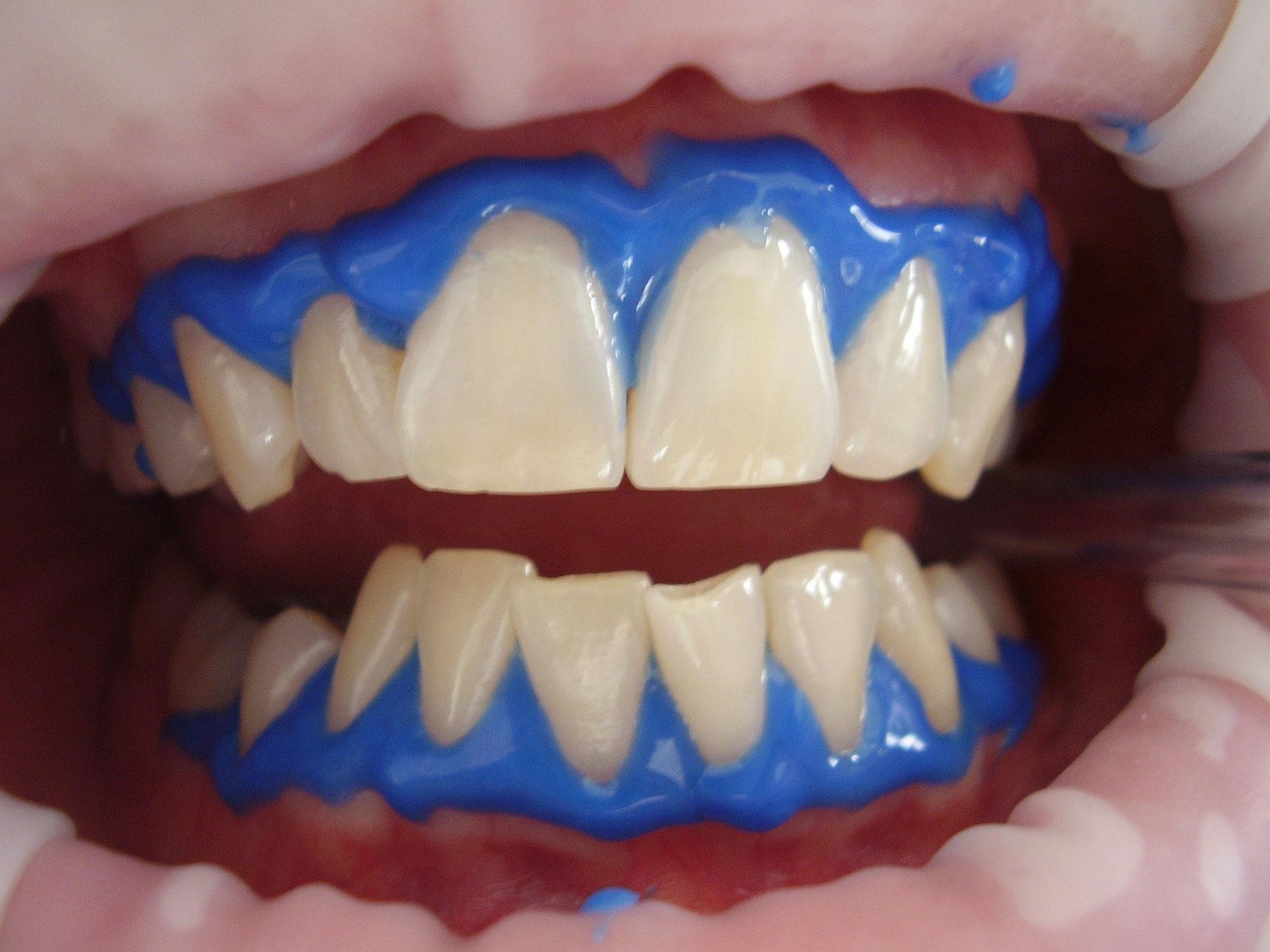 歯科医院で手軽に歯を白く!オフィスホワイトニングを徹底解説!03