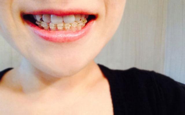 画像2【歯を綺麗にしたい方】審美歯科まとめ