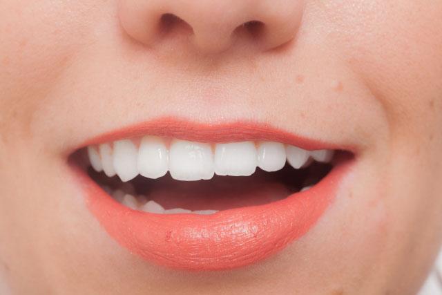 画像2歯科医がおすすめするホワイトニング、おすすめしないホワイトニング