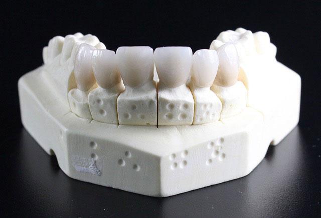 画像2生まれつき歯が黄色い/黄ばみの原因と治療方法を解説